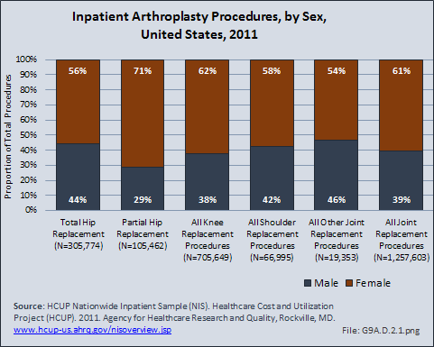 Inpatient Arthroplasty Procedures, by Sex, United States, 2011
