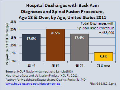 Hospital Discharges with Back Pain Diagnoses and Spinal Fusion Procedure, All Ages, by Age, United States 2012