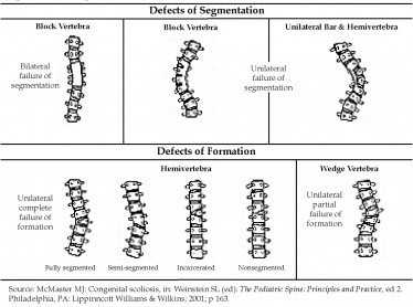 Congenital Scoliosis Syndromes